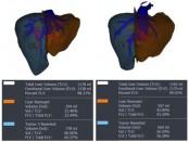 Figure 1. Virtual liver remnant (dark orange) projected at (a) 34% of total liver volume before portal vein embolization, and (b) 43% of total liver volume after portal vein embolization.
